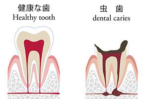 虫歯のメカニズム 健康な歯と虫歯