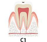 虫歯の初期段階 C1 自覚症状があることも