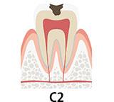 虫歯の段階 C2 虫歯が象牙質にまで及んだ状態