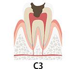 虫歯の段階 C3 虫歯が神経にまで到達した状態