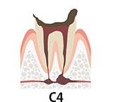 虫歯の段階 C4 歯が溶けて根だけが残った状態