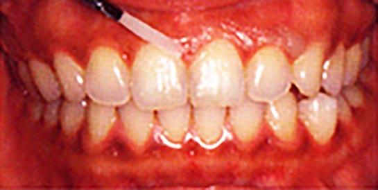 FAPホワイトニングの流れ 01.歯茎を保護するためのワックスを塗布