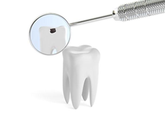 歯を削らずに、未然に虫歯を予防