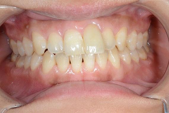 「オールセラミッククラウンで綺麗な前歯」 AFTER画像