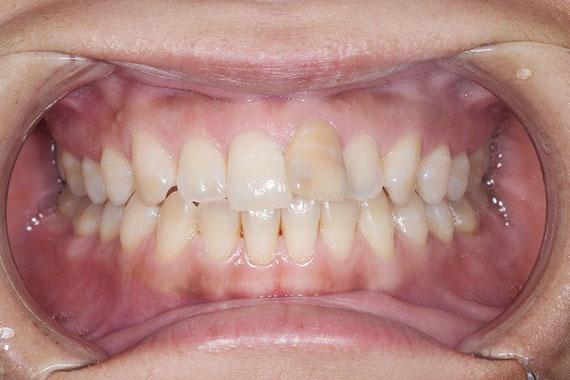「オールセラミッククラウンで綺麗な前歯」 BEFORE画像