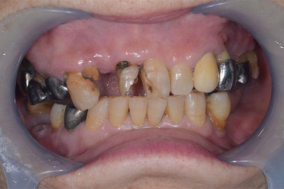 「キレイな入れ歯とかぶせもので美味しく食べて楽しく笑おう!」 BEFORE画像