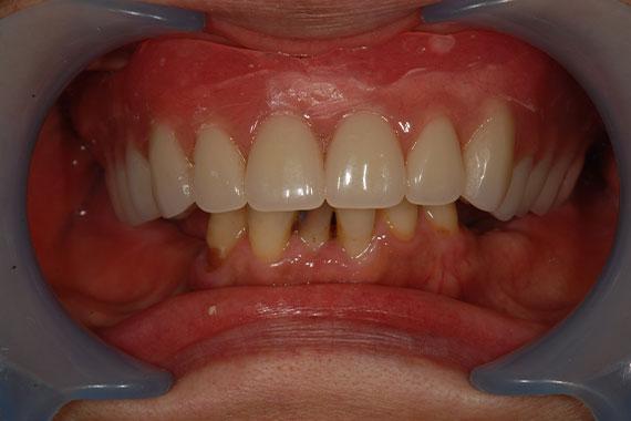 「入れ歯からインプラントに切り替えて何でもおいしく食べられる歯に!」 BEFORE画像