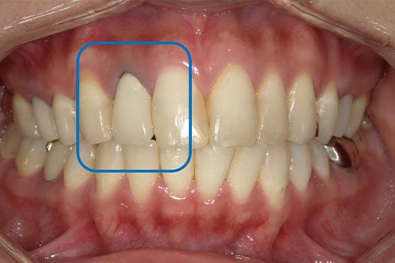 「セラミックを入れ替えて、より自然で美しい歯に」 BEFORE画像